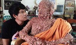 หลวงปู่วัดดังฝั่งธนฯ ป่วยโรคท้าวแสนปม กว่า 40 ปี