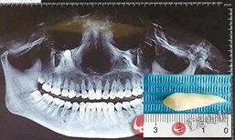 แพทย์ตะลึง สาวจีนมีฟันงอกออกมาจากใต้ตา