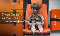"""พี่ชายของ """"ออมราน ดัคนีช"""" เด็กชายในภาพสงครามซีเรีย เสียชีวิตแล้ว"""