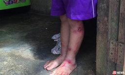 บุกช่วยเด็กหญิง 7 ขวบ ถูกแม่-พ่อเลี้ยงทำร้าย แผลเหวอะเต็มตัว