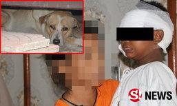 เด็กชายวัย 5 ขวบ ถูกสุนัขกระโดดข้ามรั้ว เข้าขย้ำ เย็บ 39 เข็ม