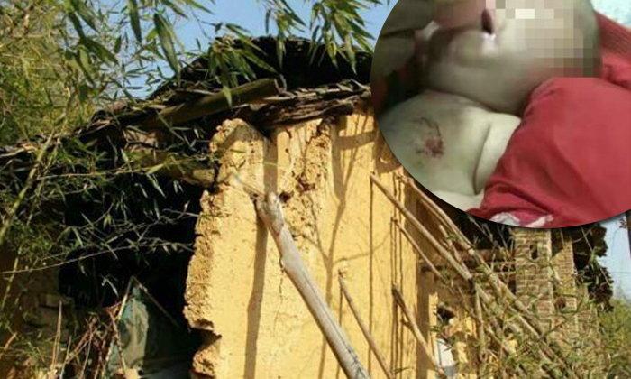 สลด! เด็กชาย 4 เดือนถูกหมาหิวกัดเจ็บสาหัสขณะนอนอยู่ในบ้าน