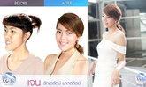เจน ธัญวรัตน์ Let Me In Thailand ศัลยกรรมเปลี่ยนชีวิต คนที่ 4