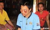 คนไทยแห่ช่วย หนุ่มชีวิตรันทด มะเร็งเนื้อร้ายกัดกินเบ้าตา
