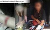 สาวโวย ถูกตำรวจตีเป็นแผลฉกรรจ์! ผบช.น. ยันให้ความเป็นธรรมทั้งสองฝ่าย