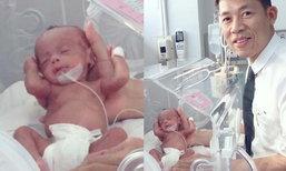 อัพเดท ทารกเมียนมา 8 ขีด ร่างกายสมบูรณ์ดูดนมได้แล้ว
