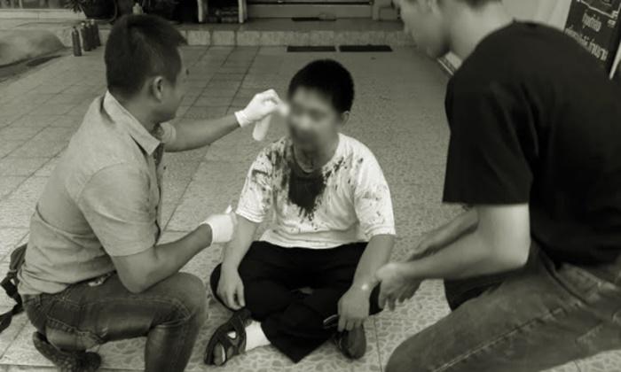 เภสัชกรหนุ่มโดนยกพวกรุมกระทืบอ่วม ตอนจะเปิดร้านขายยา